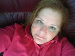 Recovery from Melanoma Surgery, Day 4
