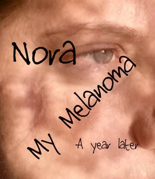 Nora a year later for blog